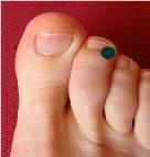 Point d'acupression sur l'orteil pour les brûlures d'estomac