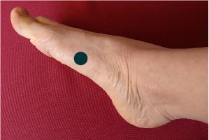 Point d'acupression sur le pied pour l'aérophagie de l'estomac